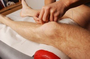 I have had every kind of therapy for my cycling knee pain