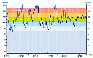 Graph 2: The SAME bike ride over moderately hilly terrain, with NO electric assistance. The blue graph line is Ron's heart rate, occasionally getting into some scary danger zones. How Many Calories can you Burn on an Electric Bike