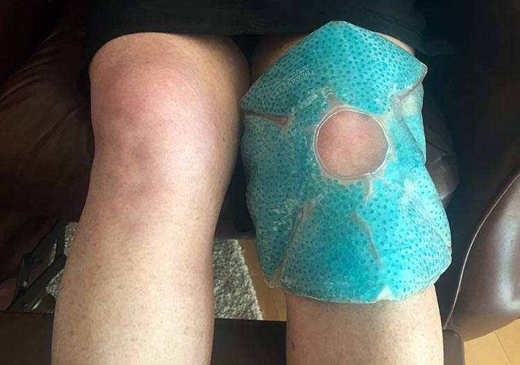Icing your knees with a product such as TheraPearl Knee Wrap will go a very long way towards preventing cycling knee pain