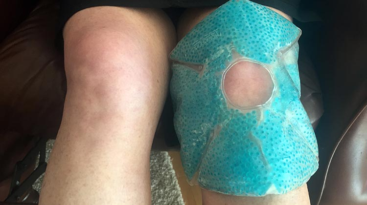 7 Best Ways to Prevent Cycling Knee Pain